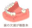 歯の欠損が複数本