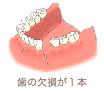歯の欠損が1本
