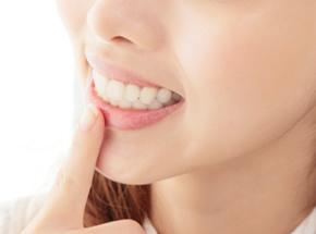審美性の高い自然な歯を実現